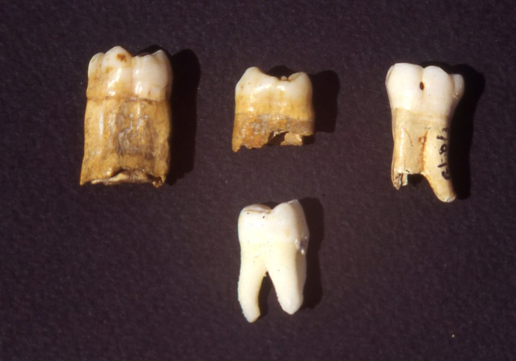 The three 'bull-teeth' or taurodont molars at the top at the start of the investigation in 1994; they contrast significantly with a modern tooth below, in size, shape and coloration; their crown surfaces are also evidently different. See below.