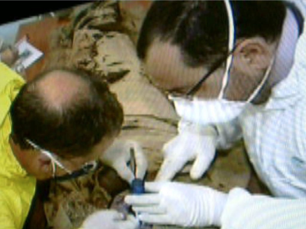 J. J. Borg on the right, sampling the mummy for aDNA, together with forensic pathologist, J. Abela Medici. The wearing caps should be a standard procedure.