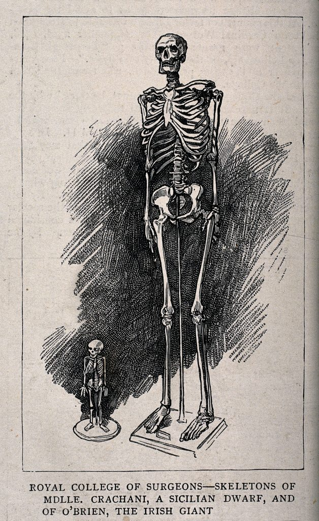 Skeletons of a male giant and a female dwarf, displayed at the Royal College of Surgeons. Wellcome Library no. 38394i © Wellcome Library, London (CC-BY-4.0)
